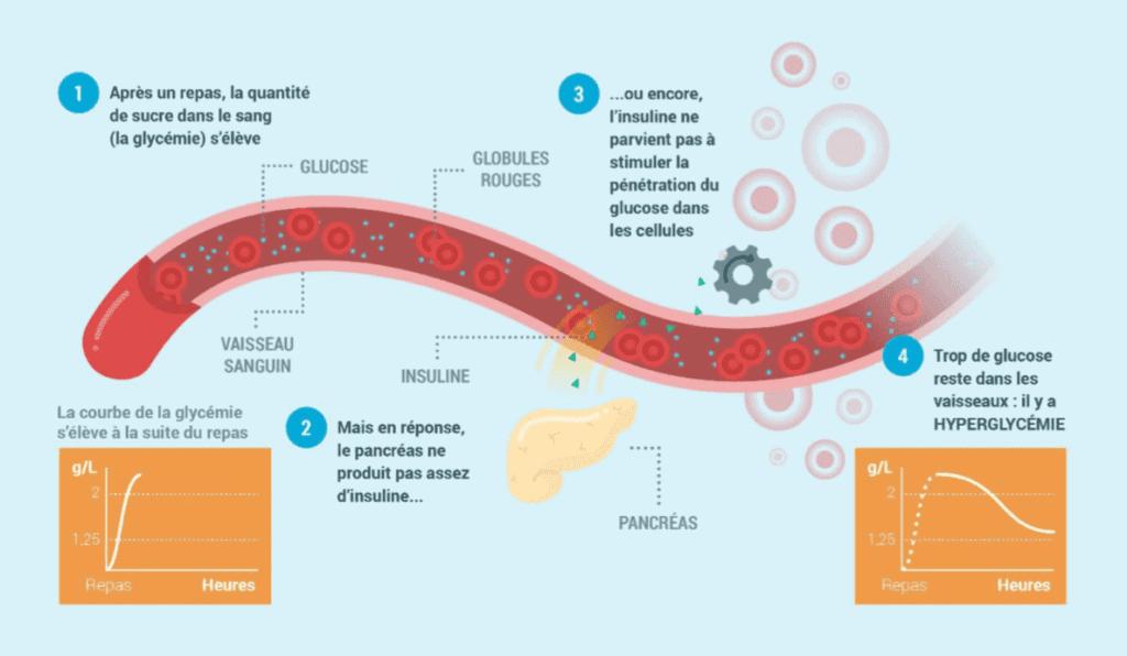 Régulation de la glycémie chez une personne atteinte de diabète (Source: CEED, 2018)